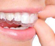 -دندان